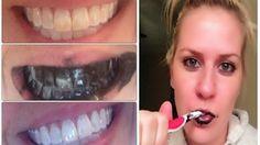 Comment blanchir vos dents naturellement - Santé Nutrition