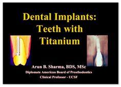 Videoconferencing: Dental Implants: Teeth with Titanium - Arun Sharma, BDS | Odonto-TV