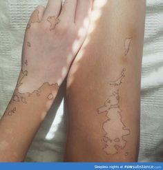 Vitiligo Y Tatuajes-Vitiligo Natural Treatment At Home Vitiligo Treatment, Skin Grafting, Shooting Photo, Belle Photo, Human Body, Tatoos, Palm Tattoos, Thigh Tattoos, Beautiful People