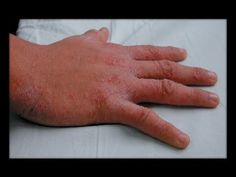 how to use sulfur for scabies