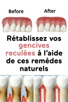 Rétablissez vos gencives reculées à l'aide de ces remèdes naturels Hygiene, Medical Care, Aide, Health And Beauty, Benefit, Beauty Hacks, Health Fitness, Healthy Recipes, Info