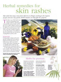 Herbal remedies for skin rashes