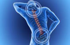 Cómo combatir y prevenir el dolor de espalda