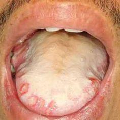 Mouth Crohn's Disease Crohn's Disease, Autoimmune Disease, Ulcerative Colitis, Crohns, Folic Acid, Girls Be Like, Nursing, Flare, Knowledge