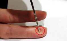 Chinese Medicine says a Needle can save a patient's life in case of stroke. This advice was given by Chinese professor who says that you always should have a needle in your house. This is amazing and unconventional way to… Herbal Remedies, Health Remedies, Home Remedies, Health And Beauty Tips, Health And Wellness, Health Tips, Alternative Health, Alternative Medicine, Natural Cures
