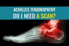 Learn what scans may be useful if you have Achilles tendinopathy.