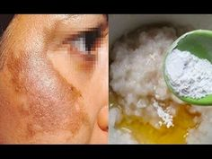 m.aprendizdecabeleireira.com ?url=http%3A%2F%2Fwww.aprendizdecabeleireira.com%2F2017%2F01%2Fmelasma-tratamento-caseiro-eficaz.html%3Fm%3D1&utm_referrer=