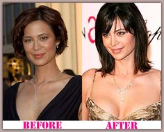 Question catherine bell boob job