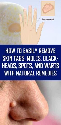 How to Easily Remove Skin Tags, Moles, Blackheads, Spots, and Warts with Natural Remedies - Natural Home Remedies Le Mole, Skin Care Routine For 20s, Skin Tag Removal, Mole Removal, Hair Removal, Natural Health Remedies, Herbal Remedies, Holistic Remedies, Acne Remedies