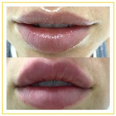 Lip filler before and after by Dr. Targett, Advanced Cosmetic Medicine