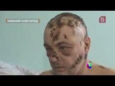 Krokodil, la droga que carcome la piel -- Noticiero Univisión - YouTube
