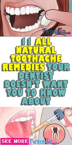 Watch This Video Classy Natural Headache Remedy for Instant Headache Relief Ideas. Incredible Natural Headache Remedy for Instant Headache Relief Ideas. Natural Headache Remedies, Natural Home Remedies, Dental Health, Oral Health, Health Care, Dental Care, Dental Hygiene, Reverse Cavities, Remedies For Tooth Ache