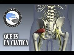 Ciática, que es y como se produce / Fisioterapia a tu alcance
