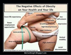 This image is from motive weight.blogspot.com.  It is making an argument to prove that obesity has numerous harmful effects on your body.