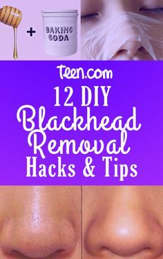 The best DIY blackhead remover hacks & tips you'll ever see