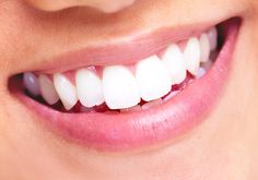 Dental Facts: #Dental #Implants will restore your smile permanently and looks very similar to natural teeth.