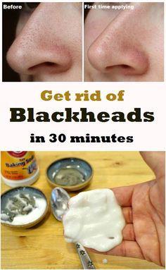 Get rid of Blackheads in 30 minutes - DIY
