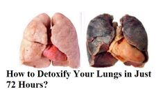 Lung cancer has become very popular disease these days. There are some people on this Earth who never smoke but still they are suffering from lung cancer or any other lung related diseases. Thus, it your duty to clean your lungs at least once a while whether you smoke or not. There are many different …