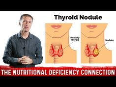 What's Behind Thyroid Nodules? Hashimoto Thyroid Disease, Autoimmune Thyroid Disease, Thyroid Nodules, Thyroid Issues, Thyroid Problems, Hypothyroidism, Palmer College Of Chiropractic, Doctor Of Chiropractic, Dr Eric Berg