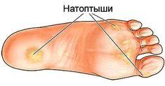 После применения этих рецептов, мои стопы всегда в идеальном состоянии! Одним из наиболее проблематичных частей человеческого тела является область лодыжек, ступней и ног. Они часто страдают от появления мозолей и трещин, а также подвержены риску развития варикозного расширения вен. Такие проблемы, как мозоли, натоптыши и трещины могут быть симптомами более серьезных заболеваний: псориаза, заболеваний щитовидной железы, экземы и диабета. Проявляйте …