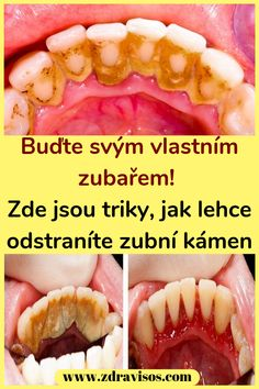 Buďte svým vlastním zubařem! Zde jsou triky, jak lehce odstraníte zubní kámen #prostředky #zubařem #zubníkámen #zuby Health, Hot, Ethnic Recipes, Nice, Flowers, Projects, Diet, Log Projects, Blue Prints