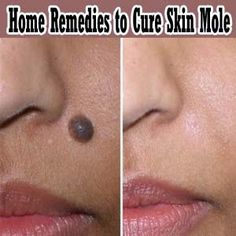 Curious to know if any of these actually work? Home Remedies to Cure Moles | Health Villas