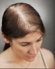 Effects of Vitamin D3 on Chronic Telogen Effluvium (Female Hair Loss) - #VitaminD3 #HairLoss