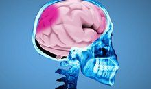 Ask Smithsonian: What Happens During a Concussion?