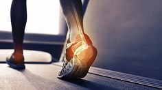 The real reason you have plantar fasciitis