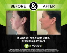 Amazing results after using 2 Facials & 3 body wraps applied to neck by It Works!  Order yours today: http://www.theultimatecrazywrap.com/ultimate-body-applicator.html