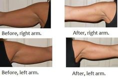 Our Ultimate Body Applicators (AKA It Works Body Wrap) can be cut in half and put on each arm! Awesome HUH?!  #MagicBodyWrap  https://wholenothalevel.myitworks.com/Shop/Category/178