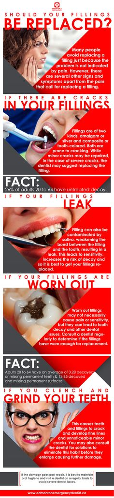 If you see the given signs such as cracks in your fillings, leak and if your fillings are worn out, then you must replace your fillings.