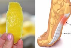 Lemon Peel - How To Minimize Chronic Pain And Inflammations With It? Find 2 Natural Lemon Peel Treatments to Minimize Chronic Pain Natural Cures, Natural Health, Natural Detox, Health Benefits, Health Tips, Health Options, Lemon Benefits, Health Articles, Body Fitness