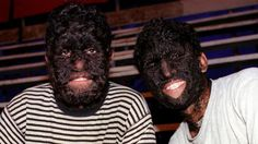 """Hypertrichosis is also called """"werewolf syndrome"""" or Ambras syndrome, and it affects as few as one in a billion people; and in fact, only 50 cases have been documented since the Middle Ages."""