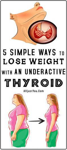Hypothyroidism slows down your metabolism, making it more difficult to lose extra pounds and maintain a healthy body weight. But weight loss is still possible with hypothyroidism. For producing sev… Thyroid Symptoms, Thyroid Diet, Thyroid Health, Thyroid Disease, Thyroid Vitamins, Thyroid Nodules, Hypothyroidism Diet, Lyme Disease, Gut Health