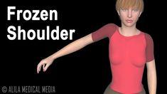 Frozen Shoulder Pain, Stiff Shoulder, Shoulder Pain Relief, Shoulder Joint, Neck And Shoulder Exercises, Shoulder Muscles, Shoulder Doctor, Shoulder Anatomy, Neck Yoga