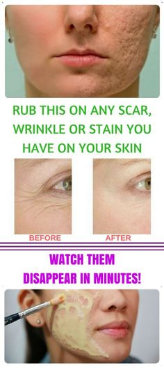 RUB THIS ON ANY SCAR, WRINKLE OR STAIN YOU HAVE ON YOUR SKIN | Remedies