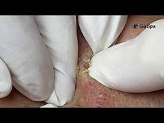 Epidermoid Cyst, Sell On Etsy, Acne Treatment, Medical, Youtube, Remove Blackheads From Nose, Grains, Skincare Routine, Medicine