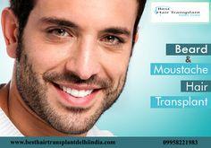 #beard, #moustache, beard transplant clinic, moustache transplant clinic, best hair transplant surgeon, best beard and moustache transplant in Delhi