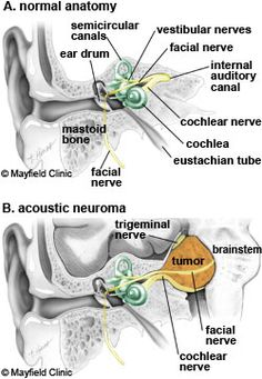An acoustic neuroma (vestibular schwannoma) is a tumor that grows from the nerves responsible for balance and hearing. Brain Tumor, Brain Injury, Vestibular Schwannoma, Ear Anatomy, Skull Anatomy, Facial Nerve, Brain Stem, Chiari Malformation, Trigeminal Neuralgia