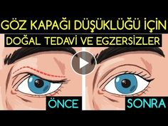 How to Do Natural Treatments and Exercises for Practical Eyelid Lowness? Natural Treatments and Exer Natural Treatments, Natural Remedies, Anti Aging, Massage Marketing, Face Yoga, Eye Contour, Homemade Skin Care, Beauty Care, At Home Workouts