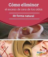 Cómo eliminar el exceso de cera de los oídos de forma natural La cera o cerumen…
