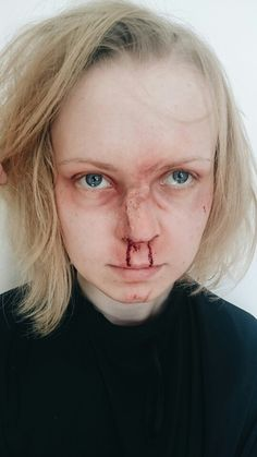 What does a broken nose feel like?