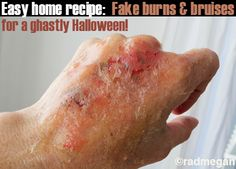 Radmegan's Home Recipes: Fake Burns & Bruises for Halloween - cbugstudio