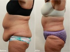 """...Other patients, who have excess skin as the result from weight-loss surgery, or diet and exercise, can benefit from removing the """"apron of skin."""""""