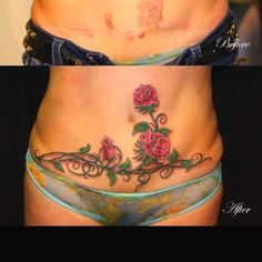 32 best Scar cover up tattoos images Pelvic Tattoos, Waist Tattoos, Body Art Tattoos, Girl Tattoos, Tattoos To Cover Scars, Scar Tattoo, Cover Tattoo, Sexy Tattoos For Girls, Small Tattoos For Guys