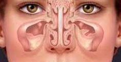 Υγεία - Η χρόνια ιγμορίτιδα είναι μια κοινή κατάσταση κατά την οποία οι κοιλότητες γύρω από τις ρινικές διόδους ( ιγμόρεια ) αναπτύσσουν φλεγμονή και πρήζονται, γι