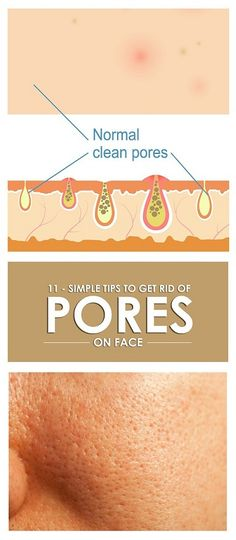 How To Reduce Pores On Face - Our Best Home Remedies Clean Pores, Clean Face, Beauty Care, Beauty Skin, Beauty Tips, Diy Beauty, Beauty Hacks, Homemade Beauty, Beauty Ideas