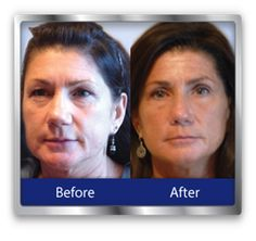 The Neurotris PICO Toner Microcurrent Facial and Body Sculptor offers a non surgical face lift in the comfort of your own home. Get professional results easily and conveniently with this powerful microcurrent device. Face Lift Exercises, Facial Exercises, Lower Face Lift, Microcurrent Facial, Dental Cosmetics, Dermal Fillers, Cosmetic Dentistry, Best Anti Aging, Plastic Surgery