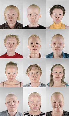 183 Best Beautiful Black Albinos images | Albinism, Albino ...